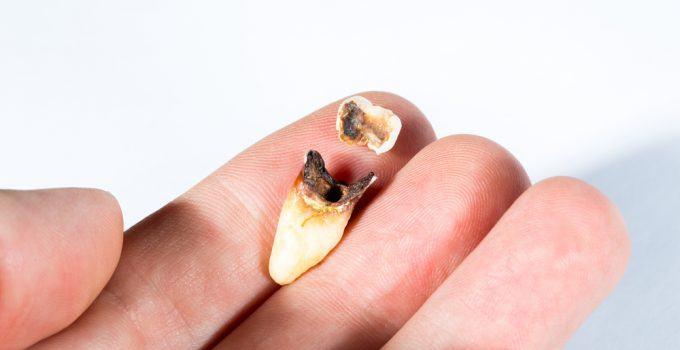 O que significa sonhar com dente podre?
