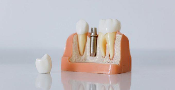 O que significa sonhar com dente quebrado?